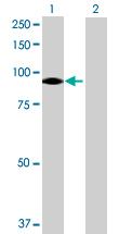 Western blot - VPS39 antibody (ab69669)