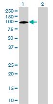 Western blot - KIAA0323 antibody (ab69672)
