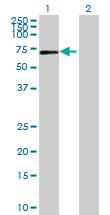 Western blot - IL17RC antibody (ab69673)