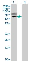 Western blot - CRTAM antibody (ab69690)