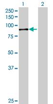 Western blot - KIAA1434 antibody (ab69691)
