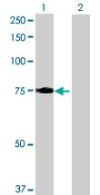 Western blot - LRCH3 antibody (ab69692)