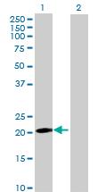 Western blot - ANKRD7 antibody (ab69693)
