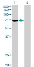 Western blot - INPP5E antibody (ab69696)