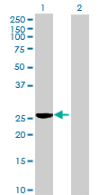 Western blot - C11orf17 antibody (ab69697)