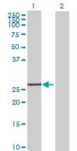 Western blot - EXOSC5 antibody (ab69699)