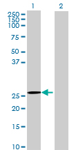 Western blot - CBR4 antibody (ab69700)