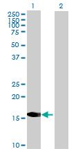 Western blot - CRYGD antibody (ab69703)