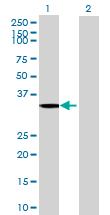Western blot - CRYZ antibody (ab69705)