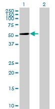 Western blot - CYP2A7 antibody (ab69709)