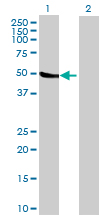 Western blot - CYP2C18 antibody (ab69710)