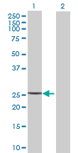 Western blot - DCI antibody (ab69712)