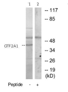 Western blot - GTF2A1 antibody (ab69762)