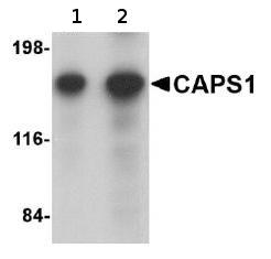 Western blot - CAPS1 antibody (ab69797)