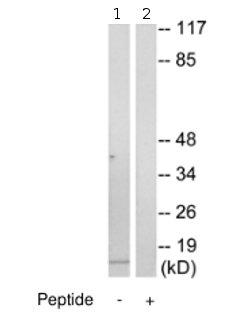 Western blot - Cytochrome b5 antibody (ab69801)