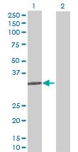 Western blot - STX11 antibody (ab69828)