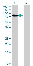 Western blot - FPGT antibody (ab69833)