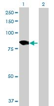 Western blot - DDX18 antibody (ab69847)