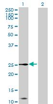 Western blot - CXX1 antibody (ab69850)