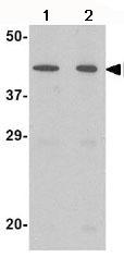Western blot - NPTX2 antibody (ab69858)