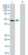 Western blot - SLC7A7 antibody (ab69872)