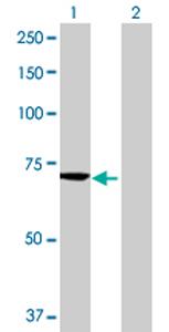 Western blot - MTMR6 antibody (ab69875)