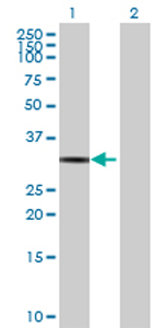 Western blot - DHRS3 antibody (ab69880)