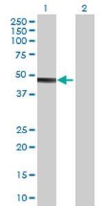 Western blot - STOML1 antibody (ab69886)