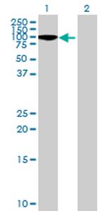 Western blot - ARHGEF6 antibody (ab69888)