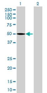 Western blot - PCYT1B antibody (ab69889)