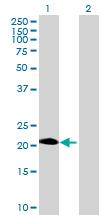 Western blot - PAGE4 antibody (ab69891)