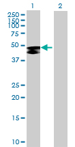 Western blot - GAL3ST1 antibody (ab69892)