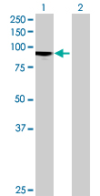 Western blot - H6PD antibody (ab69894)