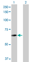 Western blot - ENTPD4 antibody (ab69896)