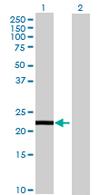 Western blot - Calneuron 1 antibody (ab69909)
