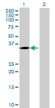 Western blot - TBC1D10A antibody (ab69911)