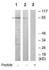 Western blot - RSK4 antibody (ab69929)