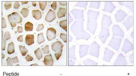 Immunohistochemistry (Formalin/PFA-fixed paraffin-embedded sections) - ATG4B antibody (ab69937)
