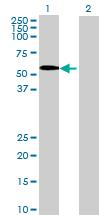 Western blot - SPOCK2 antibody (ab69952)