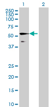 Western blot - KIAA0141 antibody (ab69953)
