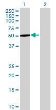 Western blot - GALNS antibody (ab69957)