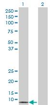 Western blot - GALNT1 antibody (ab69959)