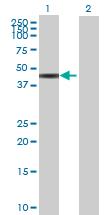 Western blot - GART antibody (ab69961)