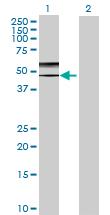 Western blot - GCNT2 antibody (ab69964)