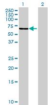 Western blot - GLUD2 antibody (ab69969)