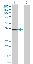 Western blot - GMPR1 antibody (ab69970)