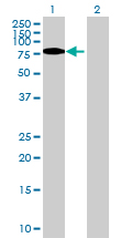Western blot - GNS antibody (ab69971)