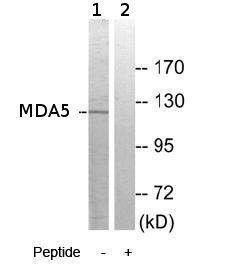 Western blot - MDA5  antibody (ab69983)