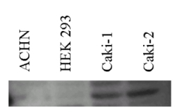 Western blot - Carbonic Anhydrase II antibody (ab7001)