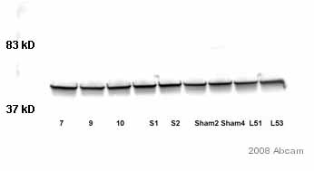 Western blot - GFAP antibody - Astrocyte Marker (ab7260)